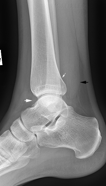 lateral ankle